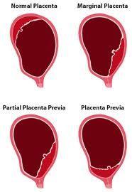 1000 images about maternity amp pediatrics on pinterest
