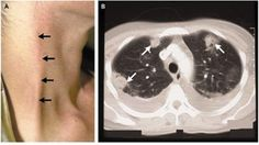 Case | Internal Medicine Curriculum: URTI: Lemierre's Syndrome (source NEJM 2004: 350; 16.e14)