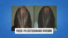 Haare schneller wachsen lassen - Haarwachstum