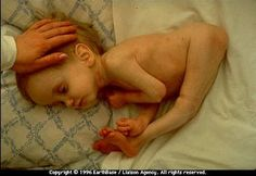 Radiation Pollution: Birth defects and deaths continue from the Chernobyl disaster. This sort of deformity is caused by DNA damage in the mother.