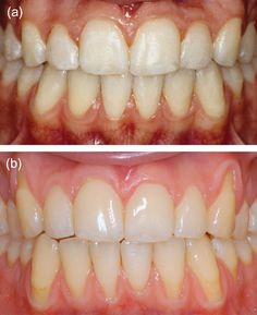 Gingival recessions and the change of inclination of mandibular ...