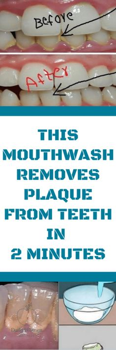 This Mouthwash Removes Plaque From Teeth In 2 Minutes