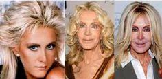 15 Most TERRIFYING Celebrity Plastic Surgery FAILS!
