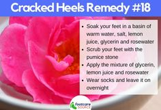 Simple Home Remedy for Dry Cracked Feet Rosewater and Glycerin for Cracked Heels Dry Cracked Heels, Cracked Feet, Cracked Heel Remedies, Soft Feet, Natural Moisturizer, Tea Tree Oil, Feet Care, Rose Water, Cocoa Butter