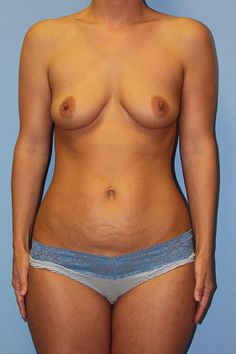 Before Mommy Makeover - Click to see what this patient looks like after her breast augmentation, mini-tummy tuck and liposuction with Dr Firouz!