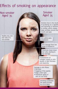 35 year old smoker vs non-smoker.