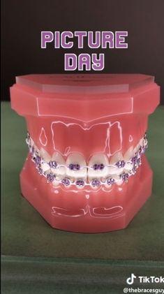 Dental Braces, Teeth Braces, Cute Acrylic Nail Designs, Cute Acrylic Nails, Cute Braces Colors, Braces Tips, Getting Braces, Cute Tooth, Brace Face