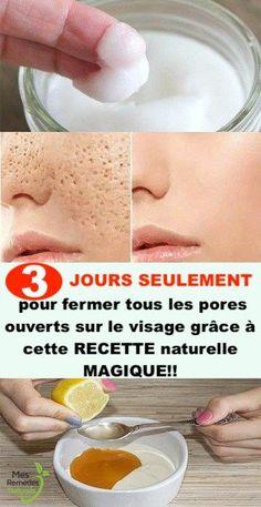 Vous avez besoin de 3 jours seulement pour fermer tous les pores ouverts sur le visage grâce à cette RECETTE naturelle MAGIQUE!! Beauty Care, Beauty Skin, Hair Beauty, Creme Anti Rides, Pores, Detox, Healthy Lifestyle, Homemade, Superstar