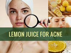 Acne No More Book: Unique Holistic Acne System Guaranteed To Cure the ROOT Cause Of Your Acne Naturally and Permanently.Giving You LASTING Acne-Free Skin. Home remedy and natural acne treatment to cure pimples, zits, acne, blackheads. Cystic Acne Remedies, Cystic Acne Treatment, Back Acne Treatment, Natural Acne Remedies, Home Remedies For Acne, Acne And Pimples, Acne Scars, Homemade Acne Treatment, Acne Control