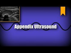 Appendix Ultrasound The vermiform appendix is a finger like projection off of the base of the cecum, it can become inflamed and require surgical removal. Thyroid Ultrasound, Ultrasound Physics, White Blood Cells, Radiology, Abc News, Pediatrics, Education, Youtube, Life
