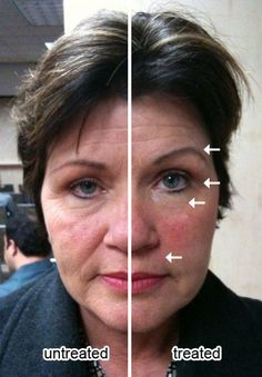 This is the power of Nu Skin's billion-dollar brand ageLOC - one half face treated with ageLOC products to restore skin back to a more youthful state.   WHO DOESN'T WANT A LIFT?  TAKE 1O YRS OFF OF YOUR FACE IN 10 MINUTES....BOOKING FREE DEMO APPTS -  contact me for details!