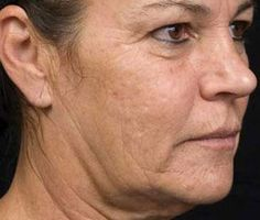 Chubby Cheeks Exercises To Improve The Middle And Lower Face: Non-Surgical Facelift: Facial Yoga Toning For Flaccid Cheeks, Jowls, And Wrinkle Removal