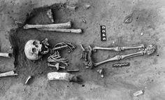 The skeleton of the earliest known case of Down syndrome is offering clues about how ancient communities looked at those with the chromosoma...