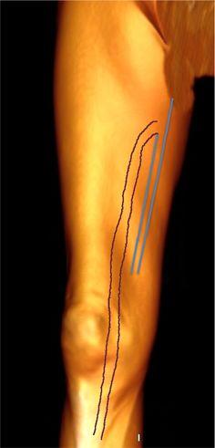Anterior accessory vein