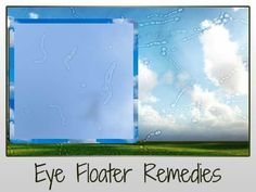 Cure Eye Floaters Naturally (Remedies from around the Web) #VitreousFloatersTreatment