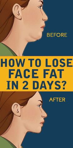 How To Lose Face Fat In 2 Days Face fat can make us look older and heavier than our actual weight. Regular workout with some exercises and a disciplined diet can help reduce face fat quickly. How to Lose Face Fat in 2 days Herbal Remedies, Health Remedies, Home Remedies, Natural Remedies, Health And Nutrition, Health And Wellness, Health Tips, Health Fitness, Wellness Fitness