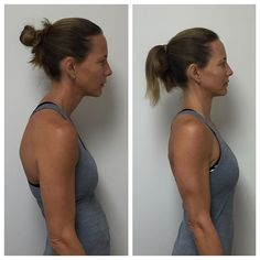 """""""Question of the day for #biomechanics and #neuromuscular enthusiasts out there…What are some of the muscular patterns that cause the postural deficit we see in the first picture and how do we get to the desired effect that we see in the second picture without over stressing the cervical spine?"""" #pilatesinthegrove #physicaltherapy #neuromusculartherapy #livepainfree #posture #kinesiology #fascia #myofascialrelease #orthopedics #movement #mobility #manualtherapy #kinematics…"""