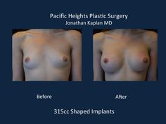 Breast Augmentation: Pricing and Before and After Photos