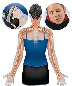 Cervical Radiculopathy Or Pinched Nerve In The Neck Causes Pain, Numbness Tingling In The Neck, Arms Hands - Causes Treatment To Help With Symptoms Sciatica Pain, Sciatic Nerve, Nerve Pain, Sciatica Massage, Sciatica Stretches, Sciatica Symptoms, Sciatica Relief, Stretching, Physical Therapy