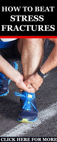 my comprehensive guide to treating and preventing stress fractures.  Inside of this post, I'll provide you with a full overview of this condition, along with the exact treatment and preventative measures you need to take in order to fend off stress fractures. http://www.runnersblueprint.com/the-complete-guide-to-treating-preventing-stress-fractures-while-running/ #Stress Fractures