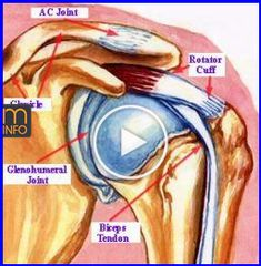 Shoulder rotator cuff injury symptoms and how to treat the pain including exercises. Bicep Tendonitis, Shoulder Pain Relief, Psoas Release, Yoga For Arthritis, Psoas Muscle, Rotator Cuff, Arthritis Treatment, Parenting Fail, Medical Prescription