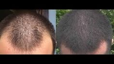 When all conditions meet well it is possible to achieve the desired expectation and better results in an individual. Surely with FUE it is possible to attain better and dense hair packaging even in a single session of hair transplantation for better hair transplantation results visit Marmm klinik which offers best Hair Transplant in Indore .