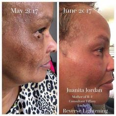 Wow!!! I love Juanita's transformation! SUCH a noticeable difference in a short amount of time!!!! For years she suffered from sun damage and after seeing her daughter's results, she decided to give Rodan + Fields a try. This is just a little over a month of using our Reverse Lightening Regimen. Her skin tone is much more even and her dullness has been replaced with a beautiful glow!!