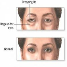 Natural Cure For Puffy Eyes