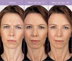 Before & After Gallery BOTOX®   www.advancedaesthetics.com
