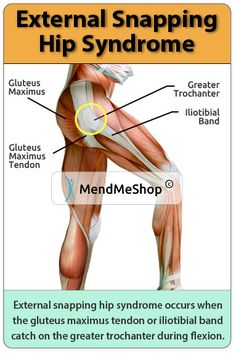 External snapping hip syndrome occurs when the IT band or gluteus maximus tendon catch on the greater trochanter. It Band Stretches, Back Pain Exercises, Hamstring Injury Treatment, Snapping Hip Syndrome, Hip Replacement Exercises, Bursitis Hip, Hip Flexors, Greater Trochanter, Physical Therapy