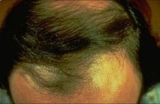 Hereditary thinning or baldness (also called androgenetic alopecia): This is the most common cause of hair loss. It affects men and women. About 80 million people in the United States have hereditary thinning or baldness. southernderm.com/...