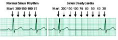 ekg rate boxes | Here is another way to do a rapid heart rate count.