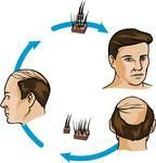 Do hair transplants work?    http://www.hair-palace.co.uk/do-hair-transplants-work/