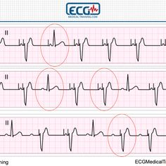 Chest Pain and Left Bundle Branch Block – Making Sense of Sgarbossa's Criteria – Part 2 College Nursing, Icu Nursing, Ekg Interpretation, Cardiac Rhythms, Cardiac Arrhythmia, Medical Photos, Medical Laboratory Science, Heart Rhythms, Health
