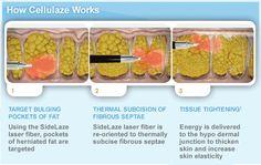 How #Cellulaze works beneath the #skin.