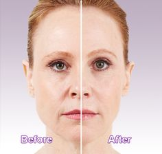 facial-plastic-surgeons-bonita-springs-fl-girlridingsexclip