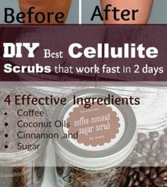 DIY Best Cellulite Scrub That Work Fast In 2 Days! With most Powerful Effective Ingredients - NZ Holistic Health Health Tips For Women, Health Advice, Health And Beauty, Cellulite Scrub, Cellulite Cream, Cellulite Remedies, Cellulite Exercises, Healthy Tips, How To Stay Healthy