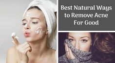 Blackhead Remover – Best Natural Ways to Remove Acne For Good Health is simply not about looking excellent or utilizing an. Best Beauty Tips, My Beauty, Beauty Secrets, Beauty Skin, Beauty Hacks, Hair Beauty, Skin Tips, Skin Care Tips, Best Skin Care Routine