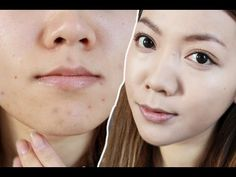 How To Cover Acne + Scars For a Flawless Finish