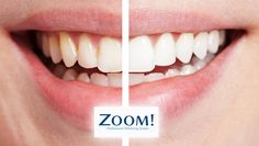 Make your teeth more brighter by getting teeth whitening in Gurgaon. We offers Instant teeth whitening at affordable cost. http://drkhullardentalclinic.com/