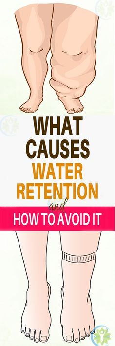 """Remedies For Water Retention Those """"extra pounds"""" you're carrying around could actually just be water weight! Here's how to reverse water retention and get rid of that puffy feeling for good. Weight Loss Meals, Stress Management, Water Retention Remedies, Physical Inactivity, Aerobic, Alternative Medicine, Natural Medicine, Herbal Medicine, Healthy Tips"""