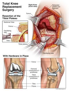 The Total Knee Replacement Attorneys | Kassel McVey | Attorneys at ...
