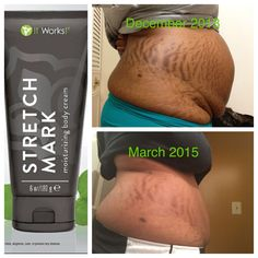 STRETCH MARK Moisturizing Body Cream Experience luxurious skin hydration while minimizing the appearance of stretch marks, fine lines, and other skin scarring for a more even skin tone. Prevent Stretch Marks, Stretch Mark Removal, Stretch Mark Tattoo, Stretch Mark Cream, Cellulite, Beauty Care, Skin Care Tips, It Works, Crazy Wrap