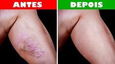 The appearance of varicose veins is not very pleasant. They usually appear on the stump, sometimes on the face. Varicose veins can affect women's self-esteem in particular. Varicose veins occur as a result of pregnancy, [. Varicose Vein Remedy, Varicose Veins, Le Psoriasis, Natural Health Remedies, Fitness Workouts, The Cure, Dark Knuckles, Leg Swelling, Skin Tips