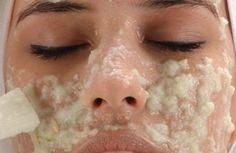 Salud Es Vida Entérate: Eliminas manchas de la cara(sol,embarazo,anticonceptivos orales,acné).