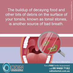 The buildup of decaying food and other bits of debris on the surface of your tonsils, known as tonsil stones, is another source of bad breath. www.OdinDental.com.au #SmileDocs #SmileDeals #australia #dentalpractice #confidence #cosmeticdentistry #dentaljob #tmj #dentistryservices #implantdentistry #invisalign #zoomwhitening #dentalcare #dentalfiller #preventivedentalcare #dentist #porcelain #crowns #veneers #dentalimplant… Tonsil Stone Removal, How To Get Rid, How To Remove, Porcelain Crowns, Tonsil Stones, Weird Facts, Random Facts, Bad Breath, Biology