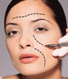 Facelift with Neck lift – Facial Plastic Surgery in India with best cosmetic surgeons at affordable prices - Cosmetic Surgery Facial Cosmetic Surgery, Plastic Surgery Gone Wrong, Neck Lift, Cosmetic Procedures, Laser Hair Removal, Beauty Skin, Beauty Hacks, Beauty Tips, Skin Care