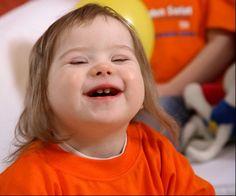 Problemas del niño con Sindrome de Down