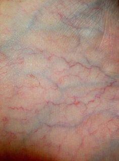 42 Ideas Skin Photography Veins - Body Parts Macro Fotografie, Foto Macro, Body Art, Im Not Perfect, Beautiful, Human Body Photography, People Photography, Frankenstein, Human Skin Texture