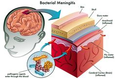 Brain inflammation, a family of conditions that includes encephalitis and meningitis, afflicts thousands of people in the United States. As its name suggests, it is characterized by a swelling of the brain (and sometimes spinal cord) and often triggered by a viral infection or, less often, a bacterial infection. Conditions involving brain inflammation are life threatening […]</p>